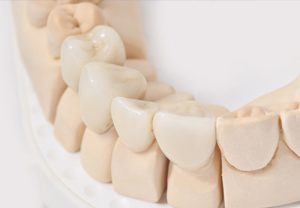 dental-crown-procedure-austin
