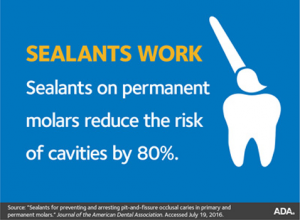 dental-sealants-austin