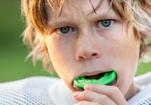 Custom Mouth Guards in Austin & Dripping Springs, TX.