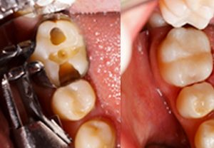 Composite Dental Fillings in Austin and Drippings Springs, TX.