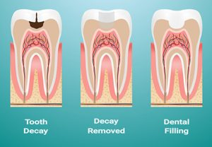 White dental fillings can help protect your teeth from cavities.