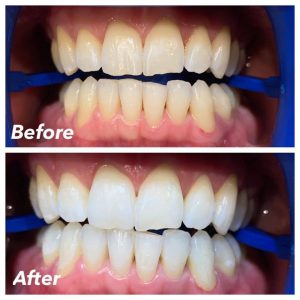 Teeth Whitening Austin Tx Dripping Springs Belterra Dental