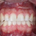 After Photo of Invisalign in Austin, TX.