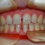 Before Photo of Invisalign in South Austin, TX.