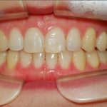 After Photo of Invisalign in South Austin, TX.